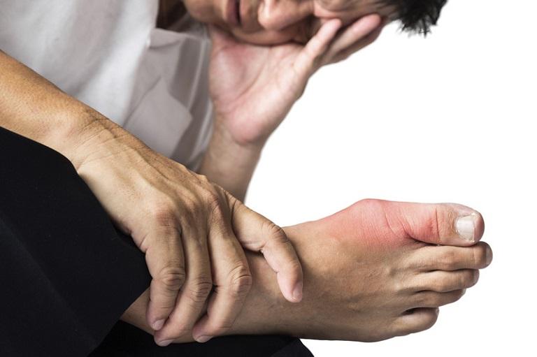 Gout cấp tính nếu không được điều trị kịp thời sẽ chuyển sang giai đoạn mạn tính và gây ra biến chứng nguy hiểm