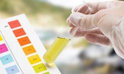 Xét nghiệm acid uric