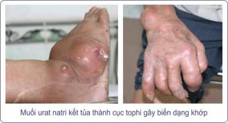 bien-chung-benh-gut-hat-tophi1