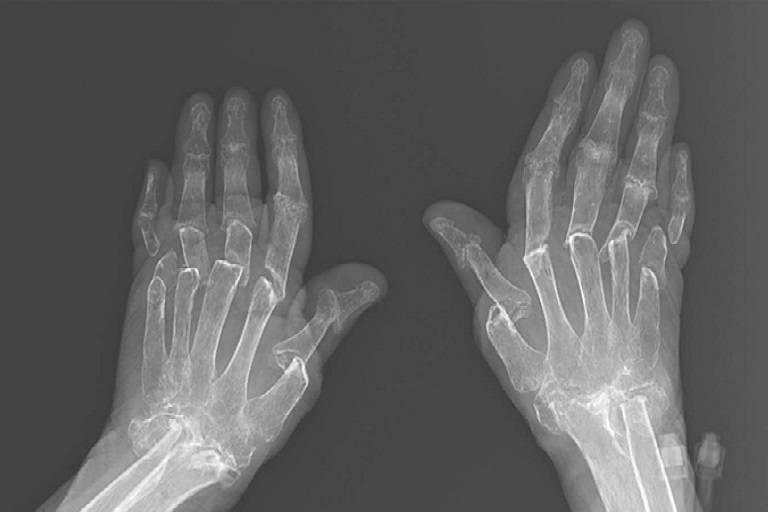 Hình ảnh X quang